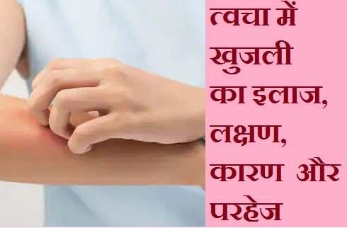त्वचा में खुजली का इलाज, लक्षण, कारण  और परहेज, best Home Remedies for Itchy Skin