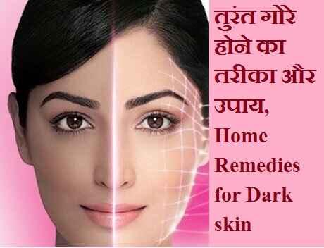 तुरंत गोरे होने का तरीका और उपाय, best Home Remedies for Dark Skin
