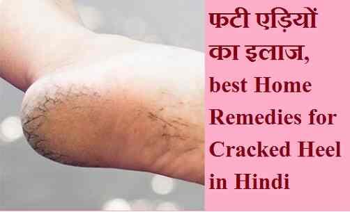 फटी एड़ियों का इलाज, best Home Remedies for Cracked Heel in Hindi