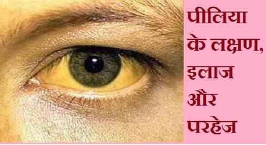 Jaundice in Hindi, पीलिया के लक्षण, इलाज और परहेज