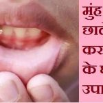 home remedies for mouth ulcer in hindi
