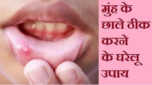 मुंह के छाले ठीक करने के घरेलू उपाय, best home remedies for mouth ulcer in hindi